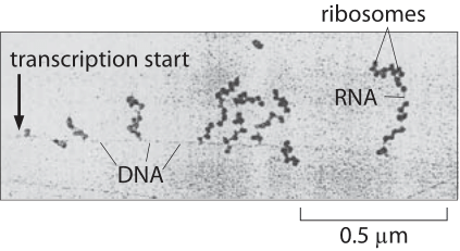 Figure 1: Electron microscopy image of simultaneous transcription and translation. The image shows bacterial DNA and its associated mRNA transcripts, each of which is occupied by ribosomes. (Adapted from O. L. Miller et al., Science 169:392, 1970.)
